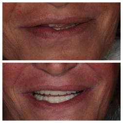 Prima e dopo il lavoro dentale