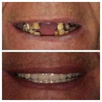 Prima e dopo il lavoro dentale - 2017