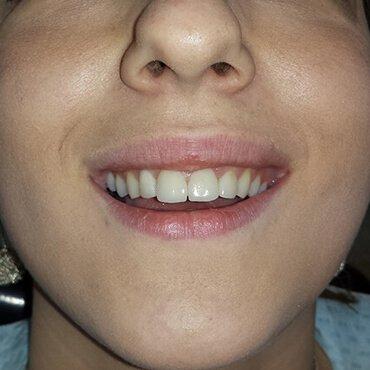 Dopo lavori dentali - Corone in ceramica non metallica