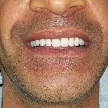Dopo il lavoro dentale - Protesi sugli impianti