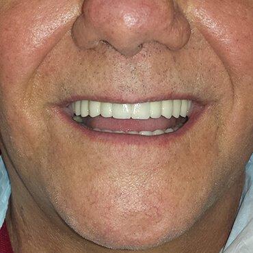Dopo il lavoro dentale - denti e impianti