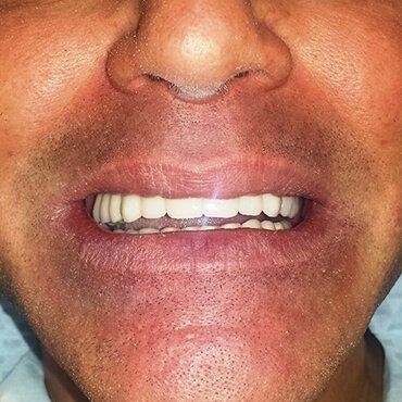 Dopo il lavoro dentale - Tutto su 6 (tutti su sei impianti)