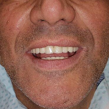 Dopo il lavoro dentale